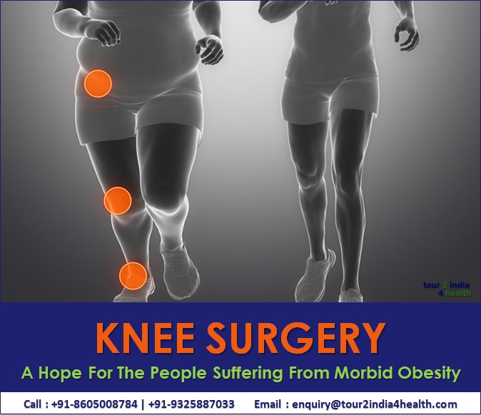 Knee Surgery: A Hope For The People Suffering From Morbid Obesity