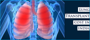 Lung Transplant in India with Survival Rate and charges