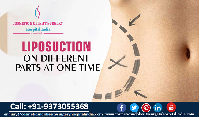 Liposuction Surgery in India Is A Popular Plastic Surgery Option