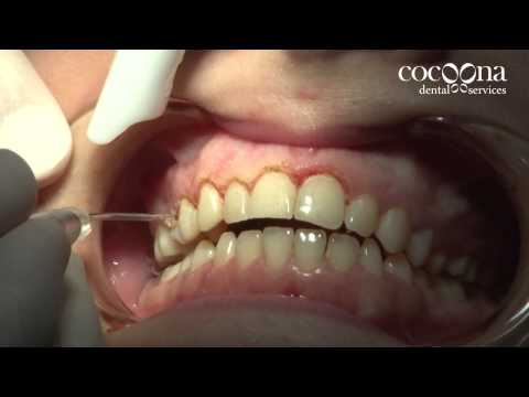 Smile Makeovers with Dental Laser