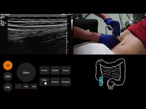 Ultrasound Tutorial: Appendix | Radiology Nation
