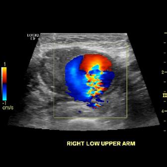Pseudoaneurysm on Color Doppler Flow of Brachial Artery