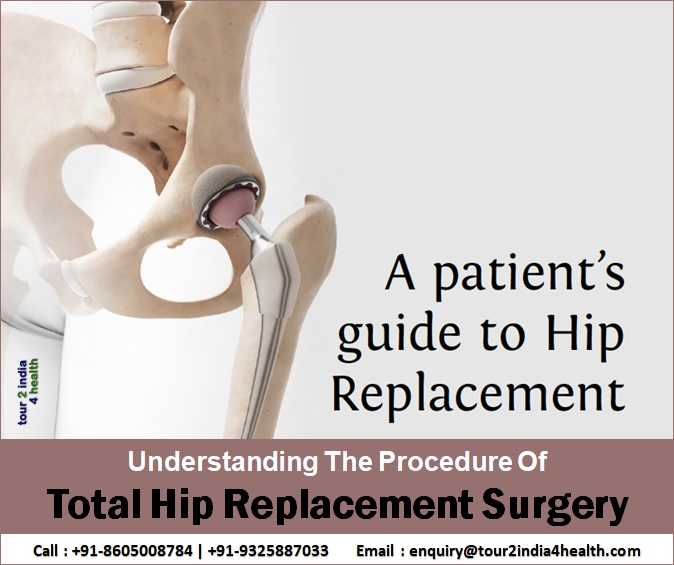 Procedure Cost For Total Hip Replacement Surgery India