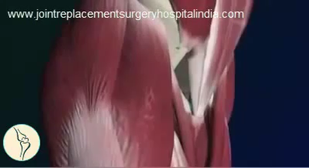Low Cost Hip Replacement Surgery In India - Jointreplacementsurgeryhospitalindia