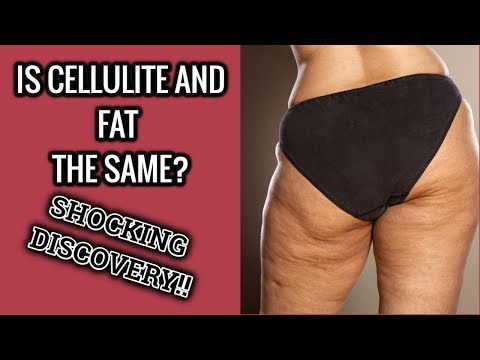 Most Amazing And Effective Cellulite Treatments Option