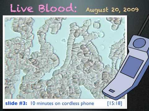 Live Blood & Electrosmog