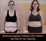 Abdominoplasty in India Helped US Patient to Get Rid of Her Obesity