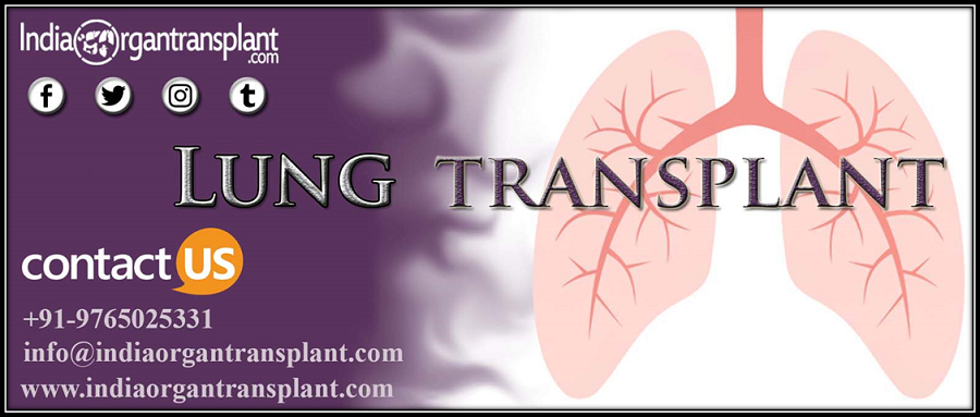 How India's Lung Transplant Surgery Favor Foreigners