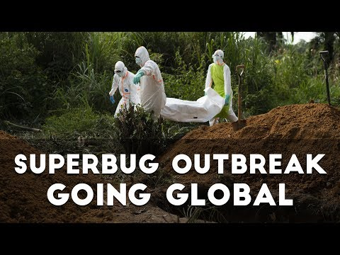 """Superbug Outbreak Going Global"" - Prophecy Update"