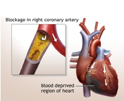 Heart Bypass Surgery in India Brings Long-Term Benefits