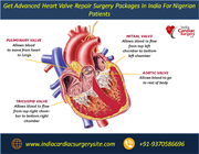 Get Advanced Heart Valve Repair Surgery Packages In India For Nigerian Patients