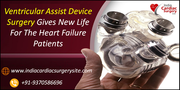 Ventricular Assist Device Surgery Gives New Life For The Heart Failure Patients