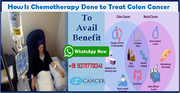 How Is Chemotherapy Done to Treat Colon Cancer