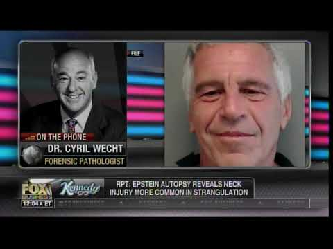 Top Forensic Pathologist: ONLY 2% of Hanging Deaths Resulted in Broken Hyoid Bone -- Like What Epstein Had (VIDEO)