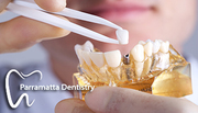 Best Teeth Implants Dentist Sydney