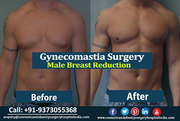 Regain Your Confidence with Gynecomastia Surgery in India