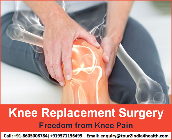 Freedom from Knee pain Cost Effective Knee Replacement Surgery in India