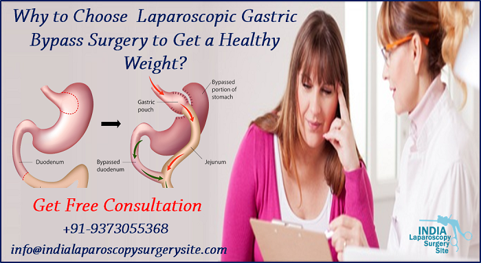 Why to Choose  Laparoscopic Gastric Bypass Surgery to Get a Healthy Weight