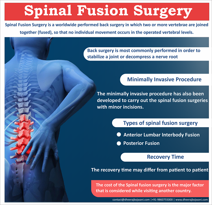 Advanced Spinal Fusion Surgery in India What to expect after the surgery