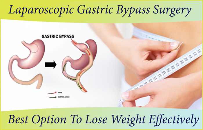 Laparoscopic Gastric Bypass Surgery Best Option To Lose Weight Effectively