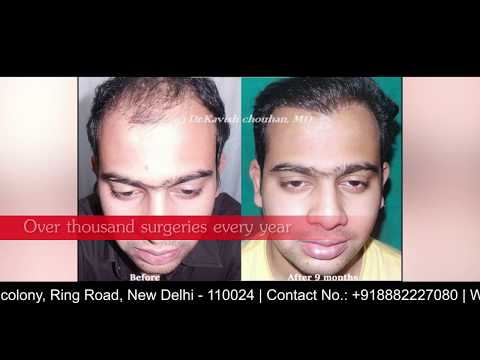 India's Largest Hair Transplantation Center in South Delhi - DermaClinix