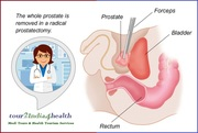 Cost Effective Radical Prostatectomy to Beat Prostate Cancer in India