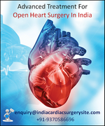 Advanced Treatment For Open Heart Surgery In India