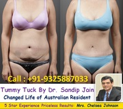 Tummy Tuck By Dr. Sandip Jain Changed Life of Australia Patient