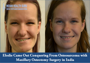 Elodie Came Out Conquering From Osteosarcoma with Maxillary Osteotomy Surgery in India