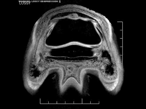 Hoofcare Video: Dr. Rich Redding Flash Animation MRI of Equine Foot Puncture Wound
