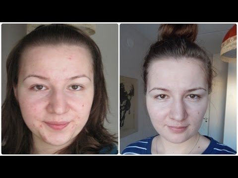 Acne Tips: How to Get Clear Skin for Real