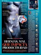 Hernias, mal que impacta la productividad