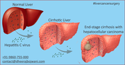 Advanced liver cancer surgery in India