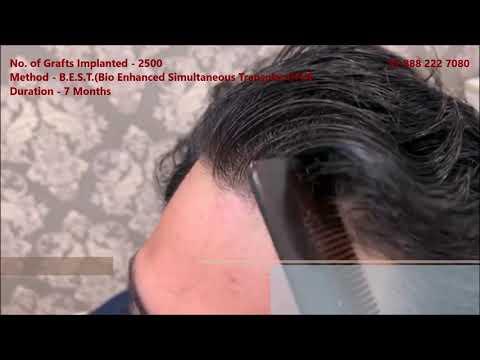 Excellent Natural Hair Transplant Results - DermaClinix New Delhi