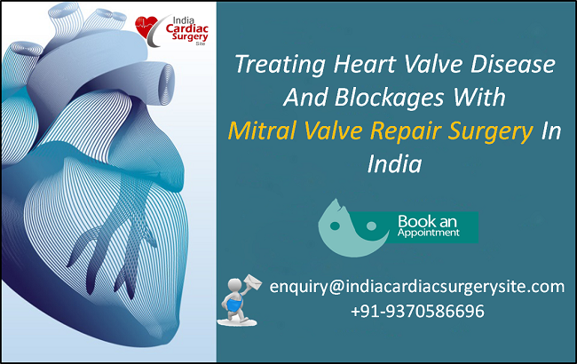 Treating Heart Valve Disease and Blockages With Mitral Valve Repair Surgery In India