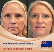 New Zealand Patient Undergoing Full Face Lift Surgery in India