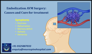 Embolization AVM Surgery, Causes and Cure for treatment