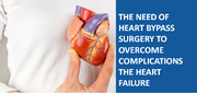 THE NEED OF HEART BYPASS SURGERY TO OVERCOME COMPLICATIONS THE HEART FAILURE