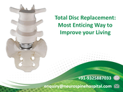 Total Disc Replacement, Most Enticing Way to Improve your Living