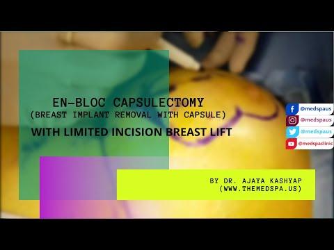 En-Bloc Capsulectomy With Limited Incision Breast Lift | Delhi, India | #DrAjayaKashyap