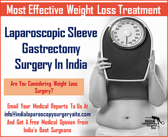 Live Free From Obesity With Laparoscopic Sleeve Gastrectomy Surgery In India