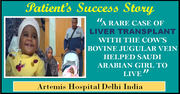 A RARE CASE OF LIVER TRANSPLANT WITH THE COW'S BOVINE JUGULAR VEIN HELPED SAUDI ARABIAN GIRL TO LIVE