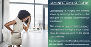 Laminectomy surgery in Bangalore - Get complete recovery form spine issues