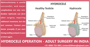 Hydrocele Surgery in India - What You Need to Know