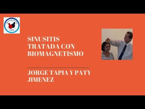 Sinusitis y Biomagnetismo 2020 0k
