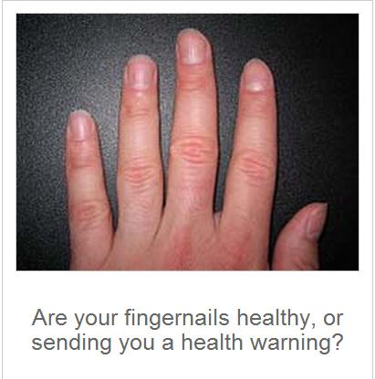 8 Health Warnings Your Fingernails May Be Sending – Vegetarian Friend