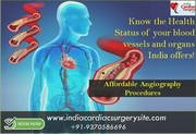 Know the Health Status of your blood vessels and organs India offers affordable Angiography Procedures