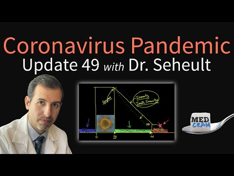 Coronavirus Pandemic Update 49: New Data on COVID-19 vs Other Viral Infections (Ventilator Outcomes)