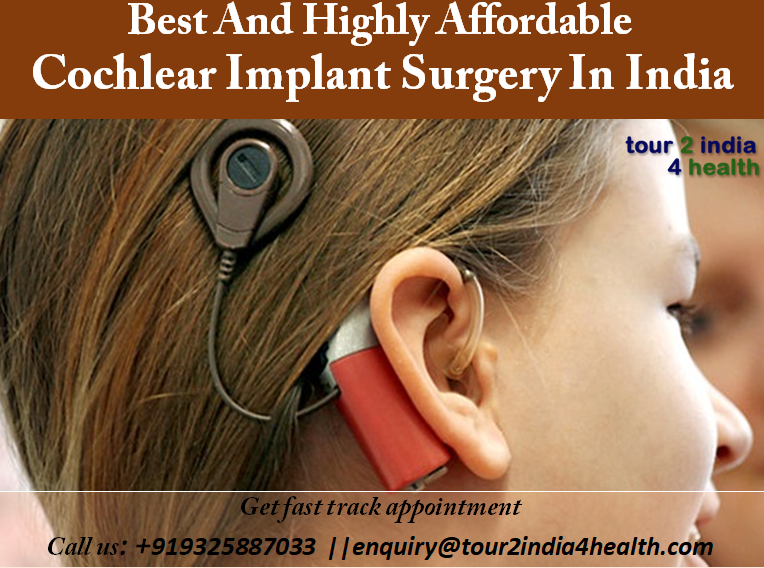 Best and Highly Affordable Cochlear Implant Surgery in India