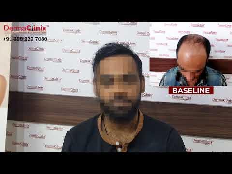 6000 Grafts BIO FUE Hair Transplant in Delhi   8 Months Results - DermaClinix    Dr Kavish Chouhan